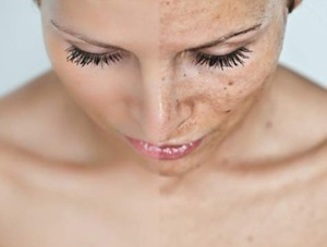 Pigmentation-Treatment_mary_cohr_swhite