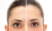 Laser-Pigmented-Skin